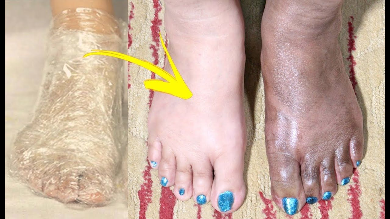 Pin By وصفة علاج Dr Bago On تبييض اليدين و القدمين وصفات رهيبة لتبييض اليدين Beauty Skin Care Routine Face And Body Beauty Skin Care