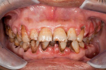 Penyebab Gigi Ngilu Dan Sensitif