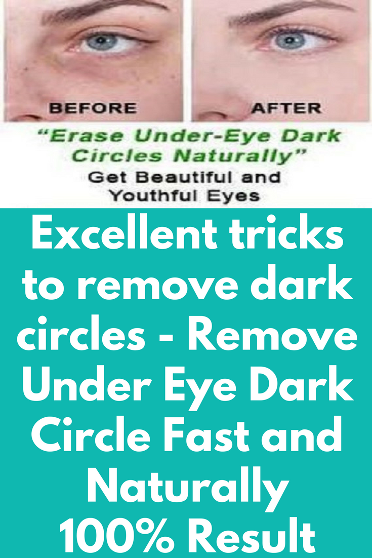 Excellent tricks to remove dark circles - Remove Under Eye ...