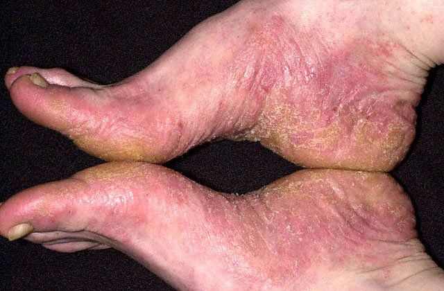 df434208a Contact Dermatitis Feet  Are Your Shoes Making You Sick