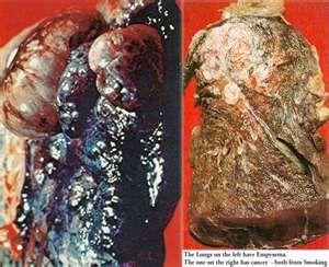 smoking lung vs healthy