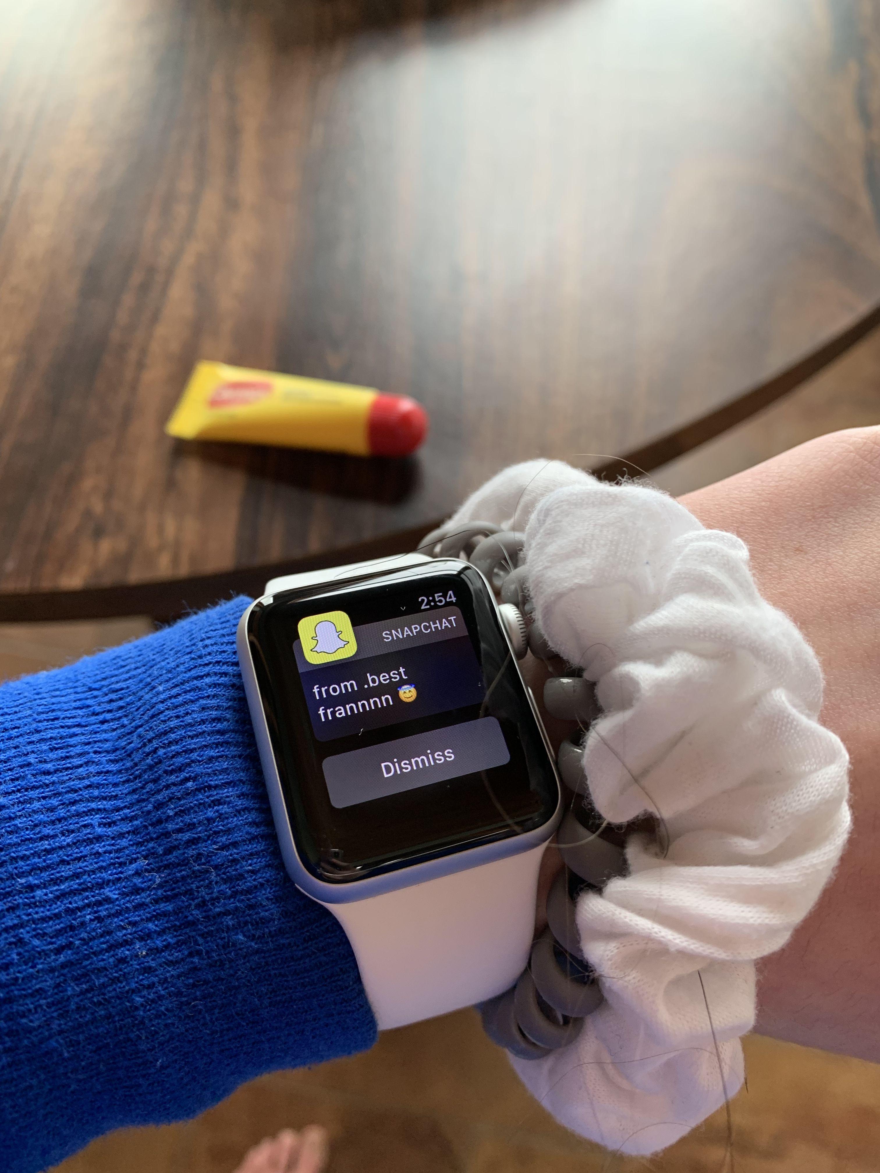 Carmex 😎 Apple watch, Wearable, Apple