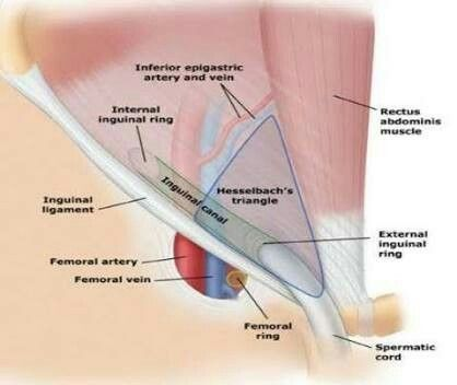 Hasselbach Triangle In Relation To Inguinal Canal For The Love Of