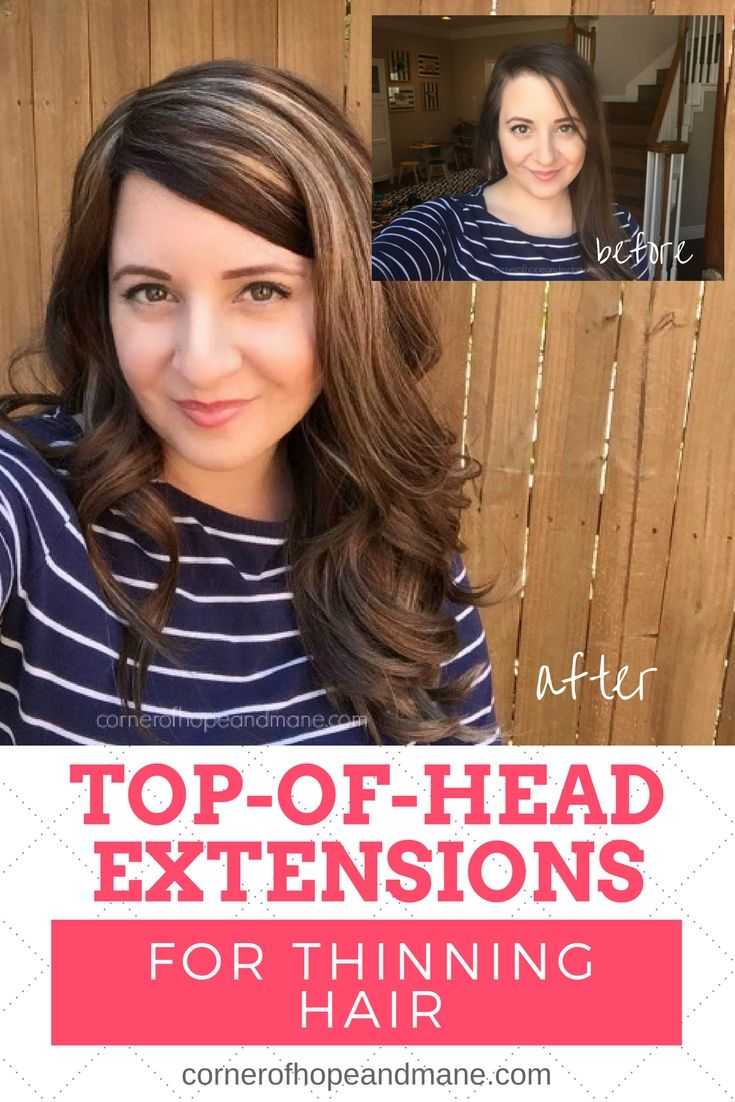 Tressmerize Review Remy Hair Extensions Topper Pinterest Thin