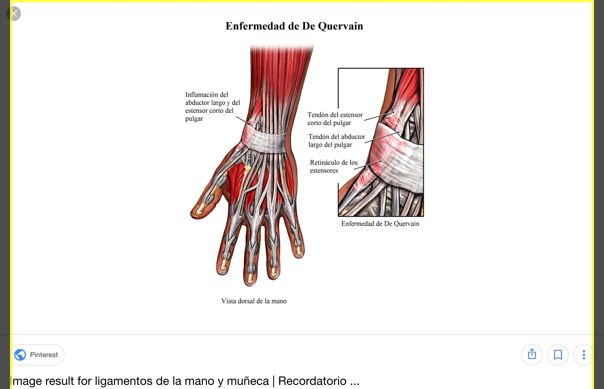 anatomia mano - Buscar con Google | anatomia | Pinterest | Searching