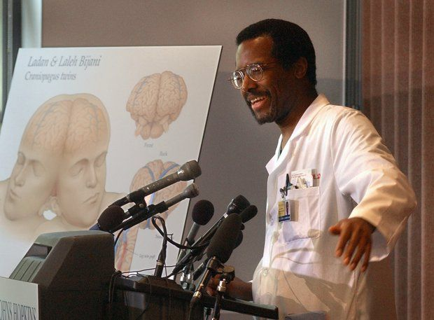 Dr. Benjamin Carson discusses the surgery to separate ...