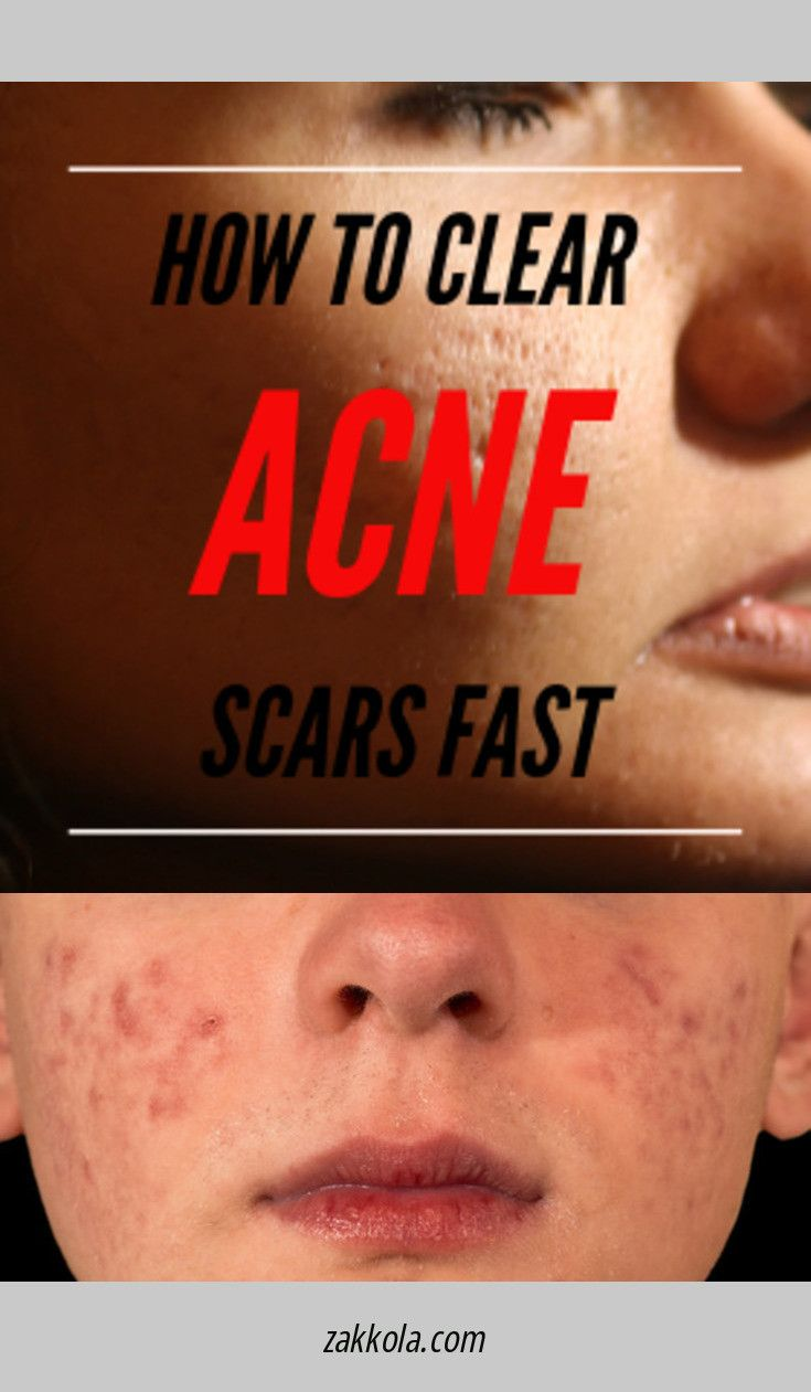 It is an image of Slobbery Drawing Salve Acne