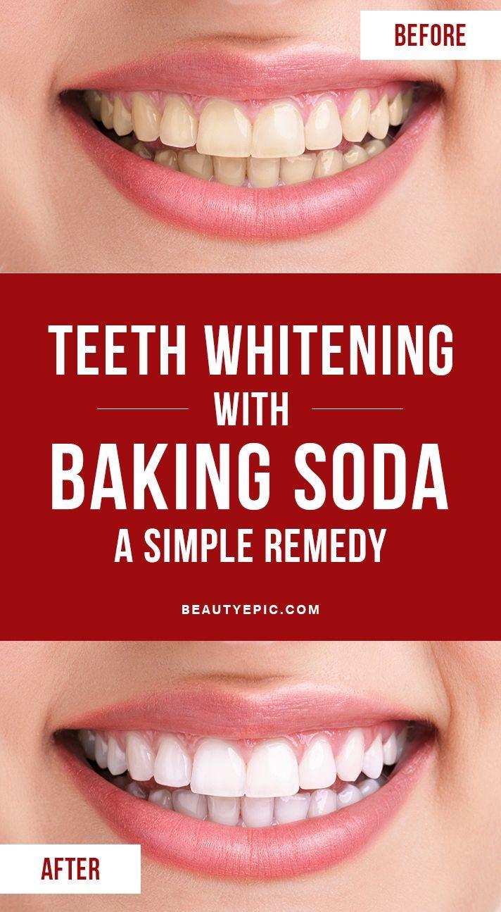 How to Whiten Teeth With Baking Soda  Soda and Teeth