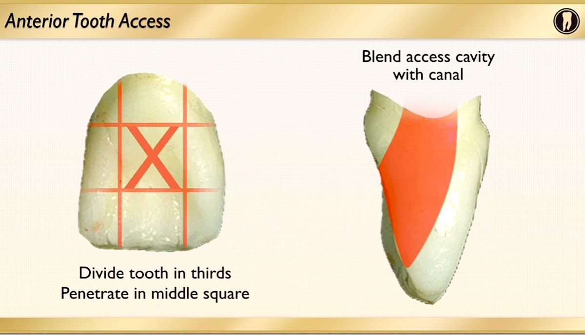 anterior-tooth-access