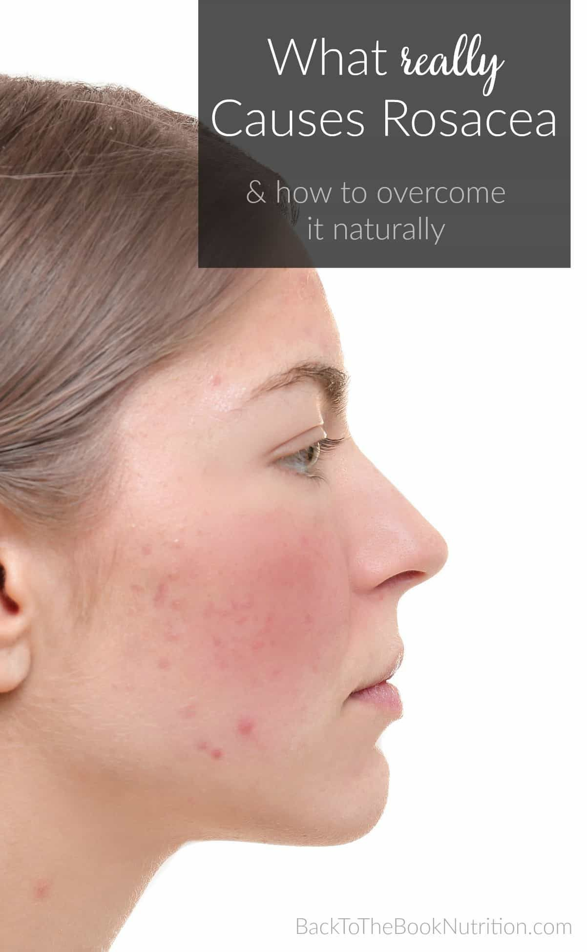 What Really Causes Rosacea And How To Overcome It Naturally Back To The Book
