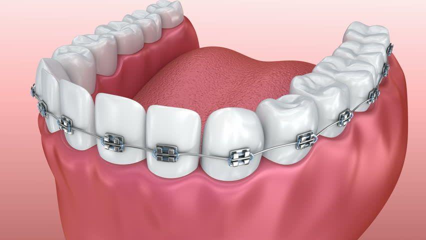 Dental Implants Dental implants, Dental implant
