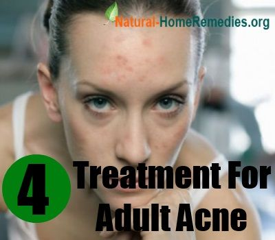 Best Acne Treatment For Adults The Best Acne Treatment Theacnecode Com
