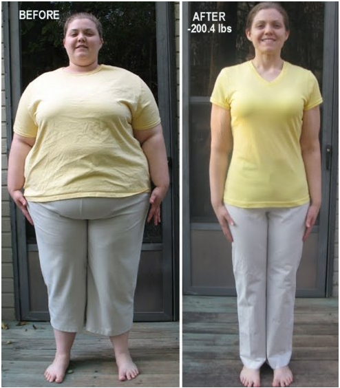 Extreme Weightloss Surgery Before And After Motivation Weight