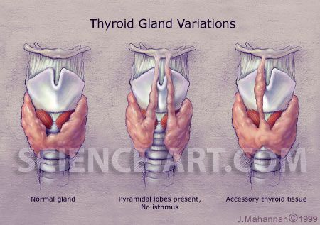 Thyroid Gland Anomolies Illustration Science Art Com Science