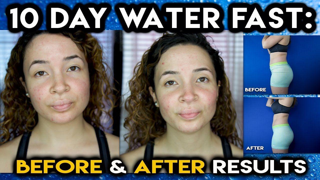 10 Day Water Fast Before After Results Met Afbeeldingen
