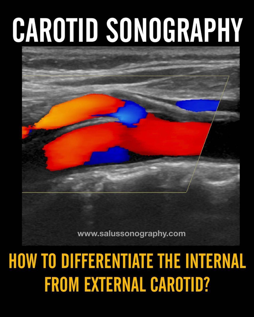Tips For Differentianting The Internal Carotid Artery