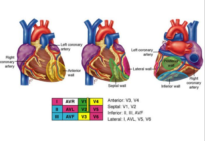 Coronary arteries, and correlating ECG leads in MI | Critical Care ...
