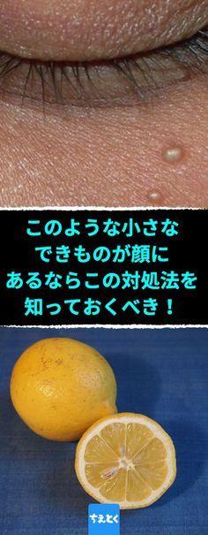 Photo of 小さな白いブツブツが顔にあるなら、この対処法を知っておくべき!