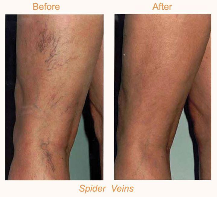 Timeline Photos Bodylase Skin Spa Veins Treatment Varicose Vein Remedy Spider Veins