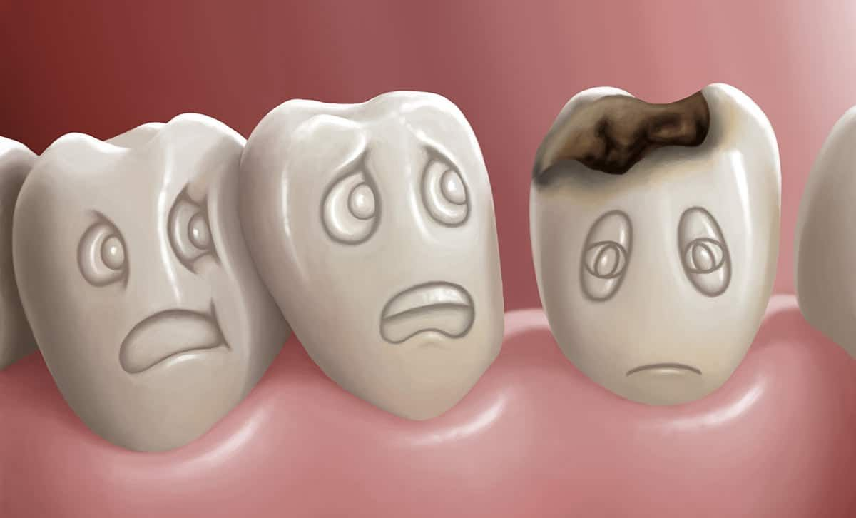 Bientôt, vous pourrez dire adieu aux caries, à la gencive dénudées, bref tous les problèmes dentaires… Comment ? Grâce à un médicament utilisé pour lutter contre la maladie d'Alzheimer ! En effet, des chercheurs anglais ont découvert que ce médicament permettrait de réparer les dents abîmées. Dans les essais cliniques dédiés au traitement d'Alzheimer, le…