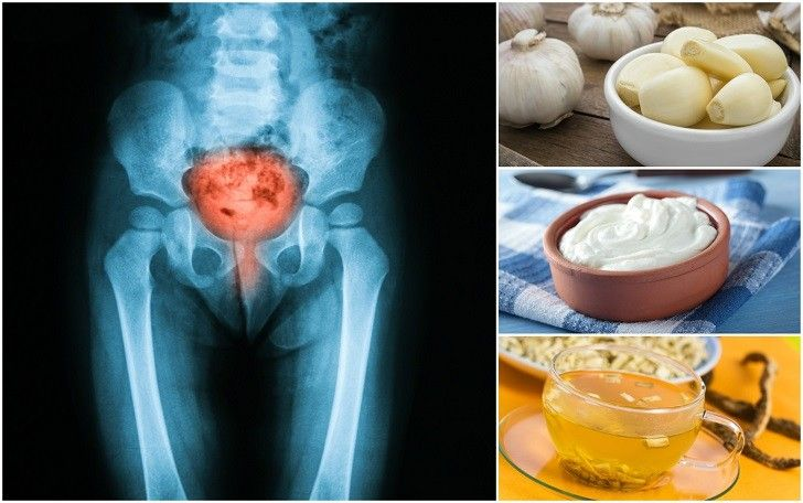 12 Home Remedies For Utis Without Using Antibiotics Bits Pieces