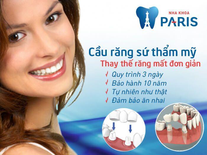 Làm cầu 2 răng mất tại sao lại phải dùng tới 6 răng sứ?  Theo đó, nếu bạn bị mất 2 răng thì hướng khắc phục cũng tương tự. Tuy nhiên, vẫn có những tùy biến khác, nếu 2 răng đó liền kề thì cũng chỉ cần mài 2 răng bên cạnh khoảng trống của 2 răng mất, đôi khi có thể mài 3 răng để có được trụ đỡ vững chắc hơn. Như vậy, sẽ phải dùng đến 4 hoặc 5 thân răng sứ cho cầu răng