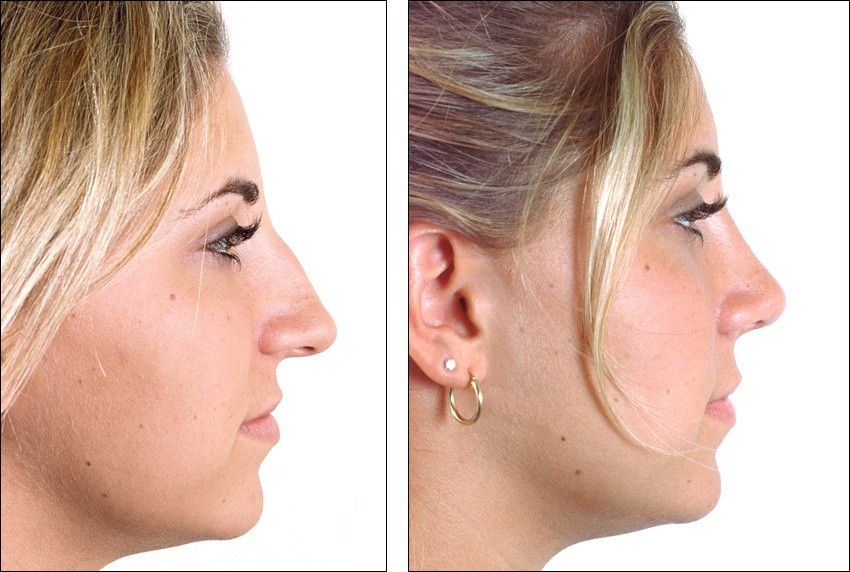 Pin by Shana on nose Nose plastic surgery, Rhinoplasty