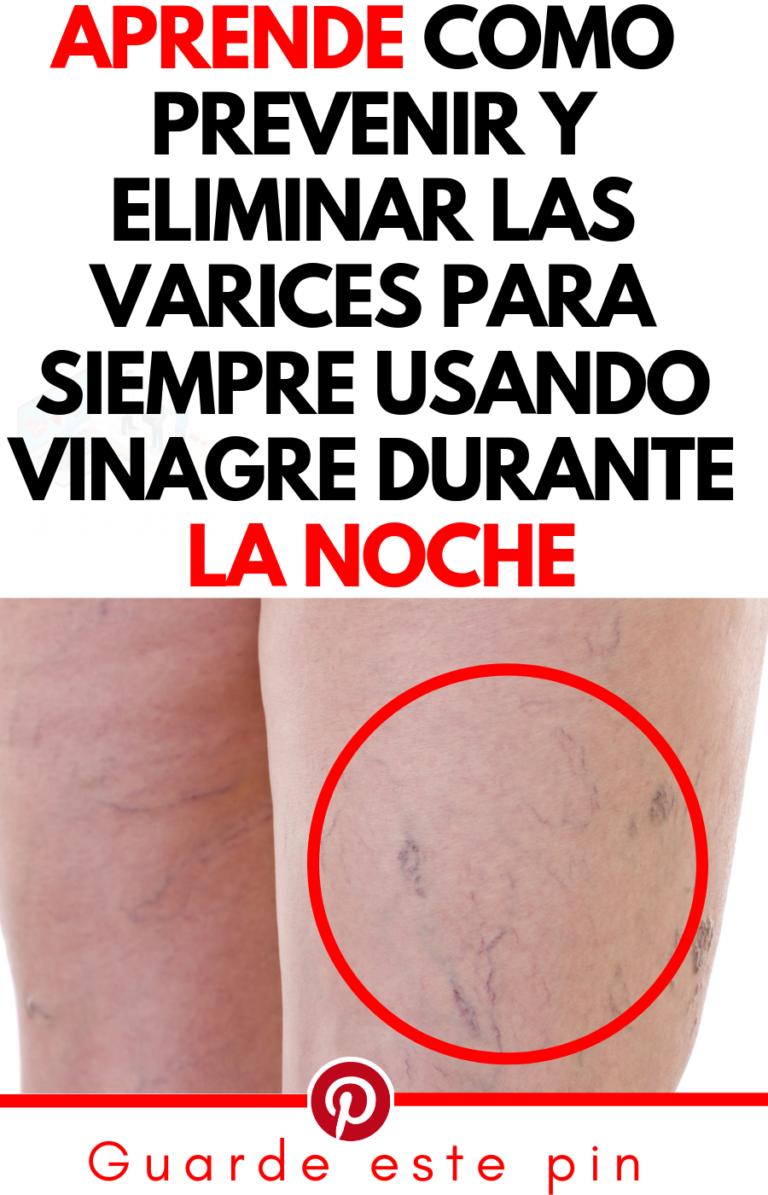 Crema Para Prevenir Las Varices Pin En Gricelda