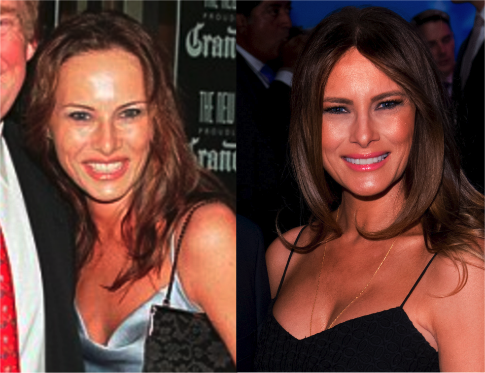 Trump S Women Plastic Surgery Bad Plastic Surgeries Celebrity Plastic Surgery Plastic Surgery Quotes
