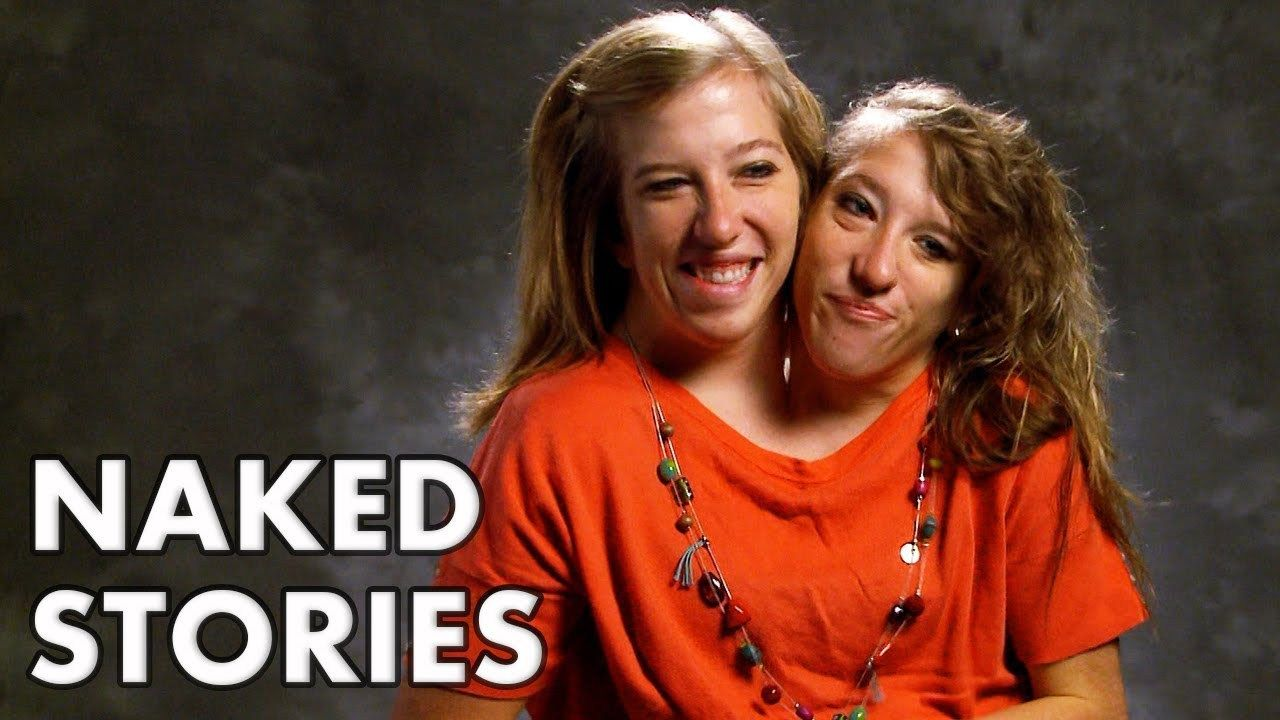 Two Conjoined Twins Explain How They Drive Conjoined Twins Twins Really Funny Pictures