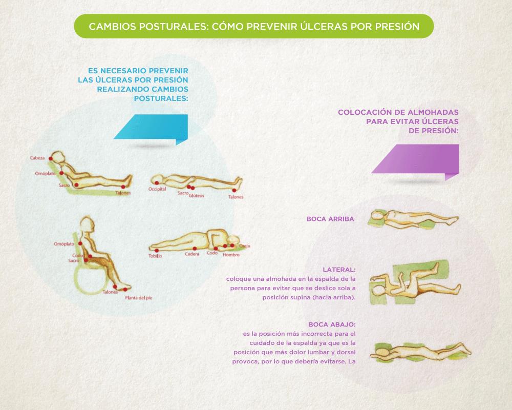 Cómo prevenir las úlceras por presión | Infografía - mapas
