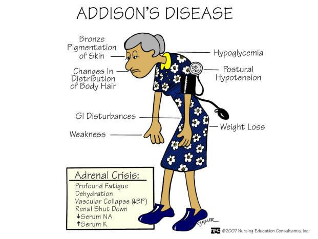 Addison's disease - symptoms of HYPOnatremia; Addison is ...