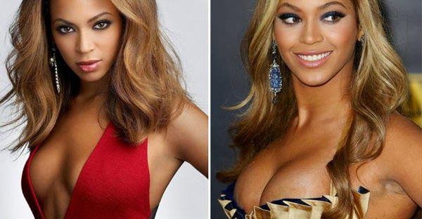 Share your celebrity before and after boob job the true