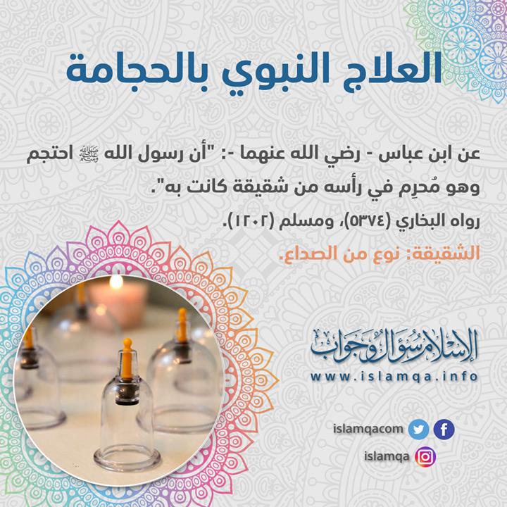 الحجامة فضلها وفوائدها Http Ift Tt 2awwufi العلاج النبوي Hijama White Out