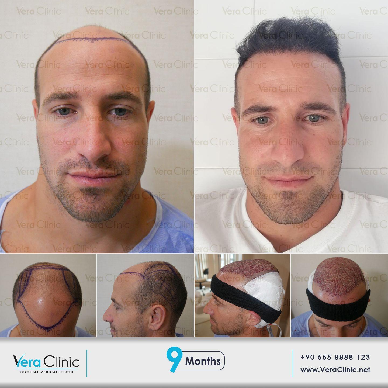Vera Clinic Hair Transplant In Turkey Hair Transplant Results Hair Transplant Hair Restoration Surgery
