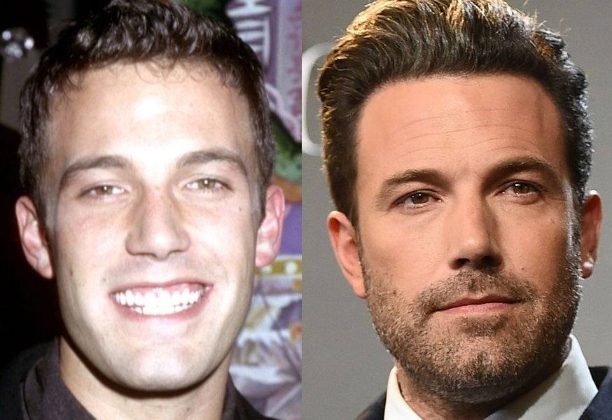 Famous Hollywood Men With Great Hair Pieces Steve Carell Ben Affleck