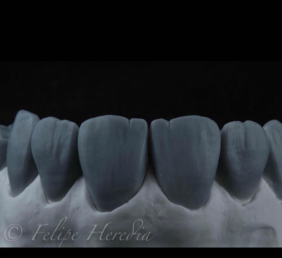 Zubtech Dental Dentalassistant Dentalstudent Medical Ortodontia Veneers Dentalife Rubberdam Smile Wa Dental Laboratory Dental Videos Dental Teeth