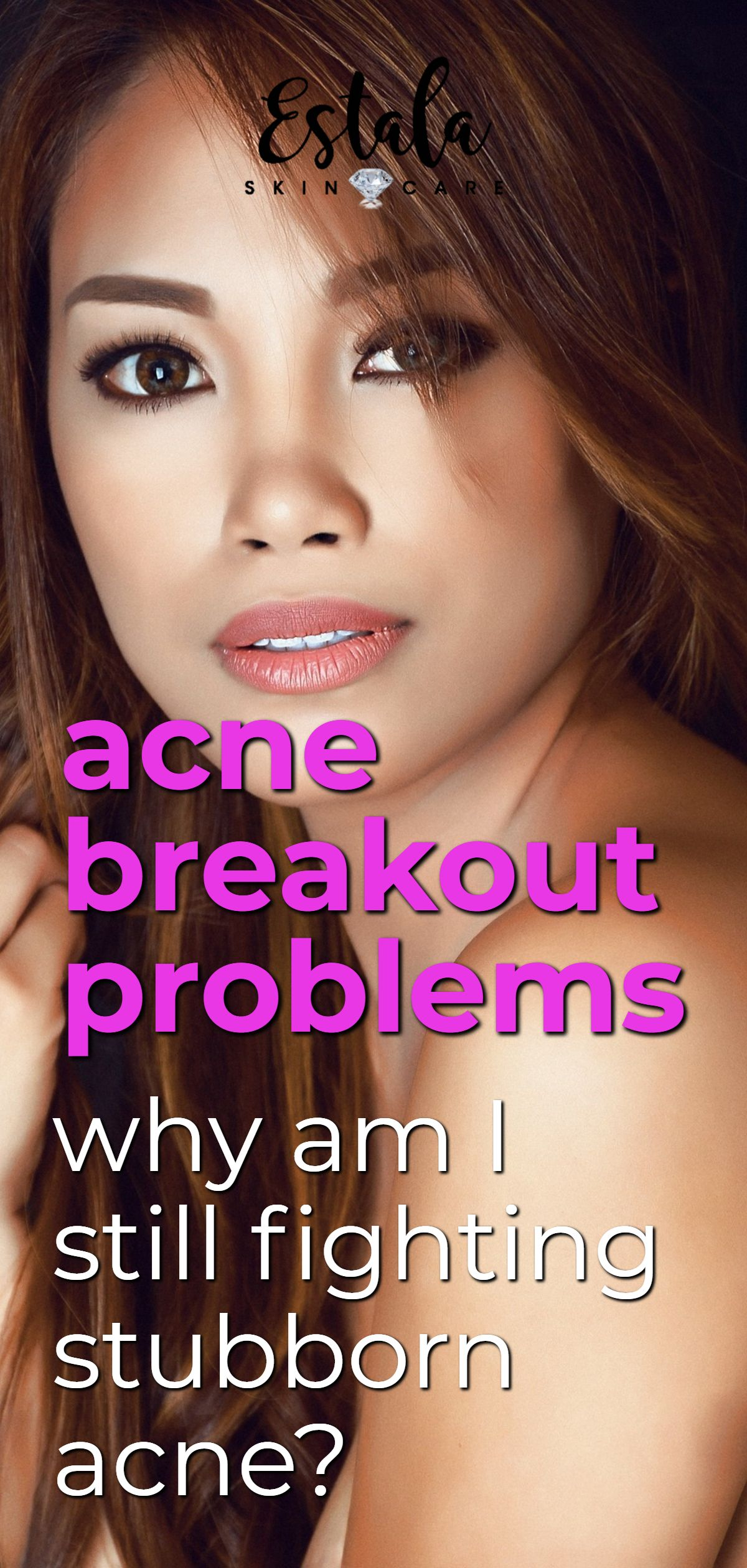3 Hidden Causes For Your Acne Breakouts (With images