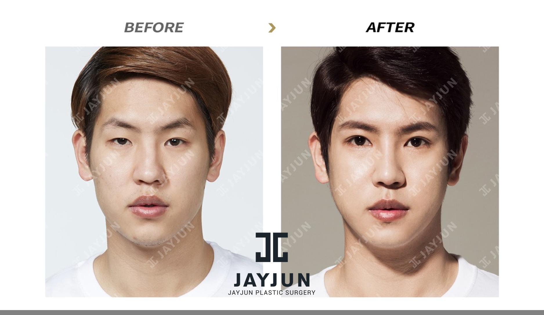 korean plastic surgery best plastic surgery in korea extreme plastic