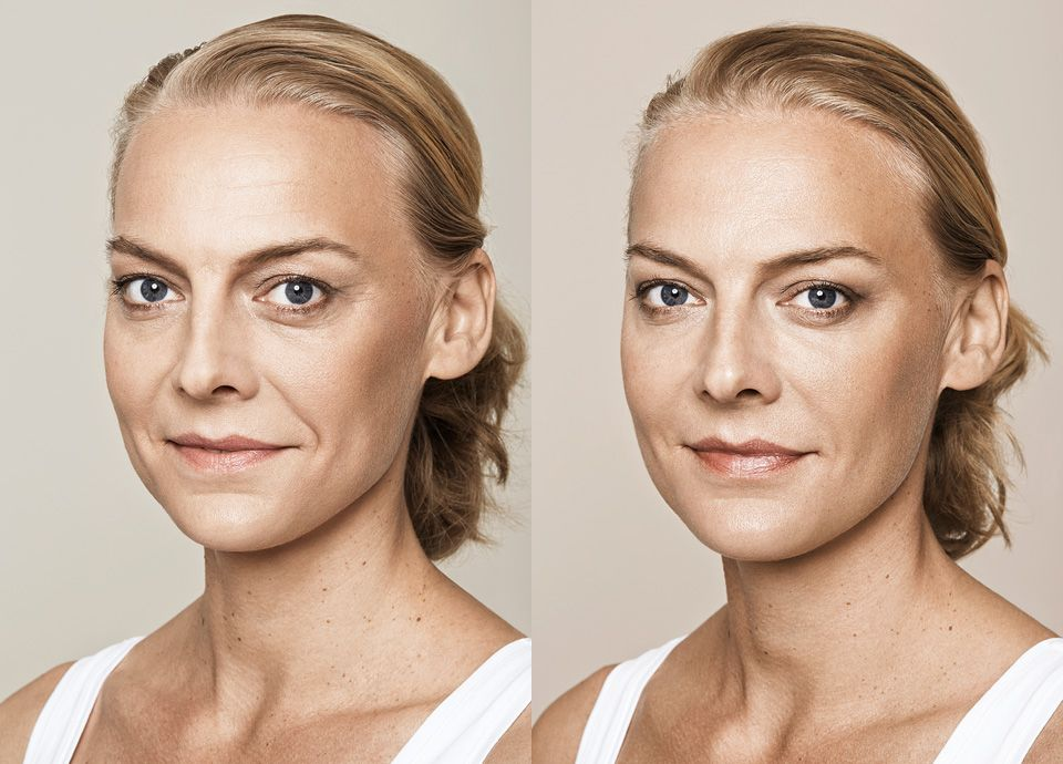 Dermal fillers and muscle relaxants can work wonders in