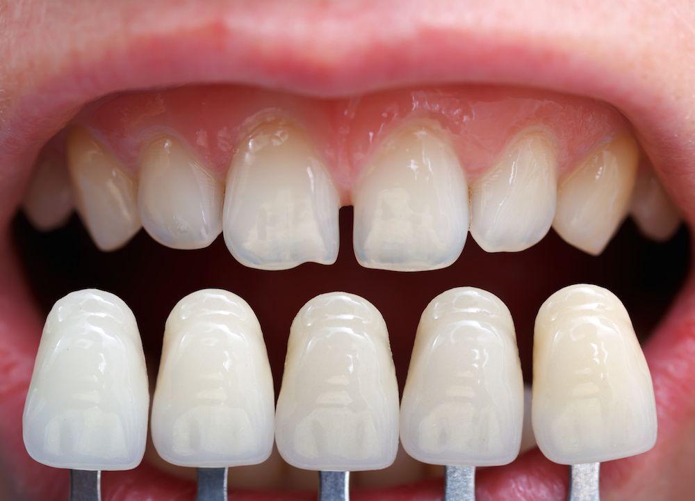 Veneers or lumineers dental veneers and dental veneers or lumineers solutioingenieria Gallery
