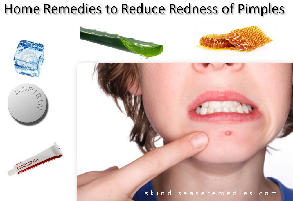 What helps with redness from acne