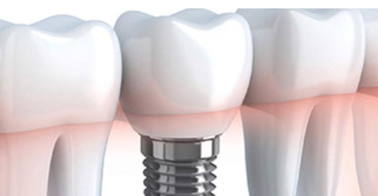 1 Stage Vs 2 Stage Implants Essendon Teeth Implants Implants Dental Implant Procedure