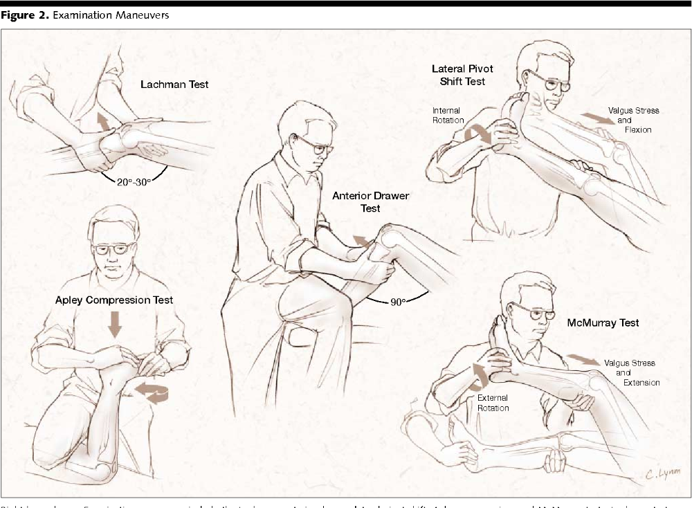 Knee Examination Right Knee Examination Maneuvers Include The Lachman Acl Anterior Drawer Physical Therapy Assistant Physical Therapy Sports Therapy