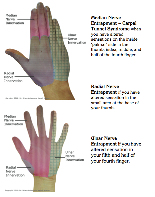 Pin by The OT Toolbox on Hand therapy OT occupational therapy tips ...