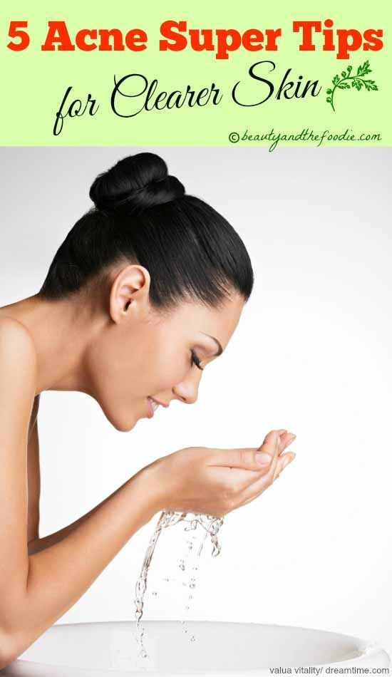 Five Acne Super Tips For Clearer Skin - #acnetips #clearskin beautyandthefoodie.com
