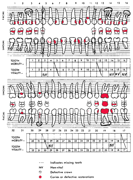 Dental chart definition of dental chart by medical dictionary