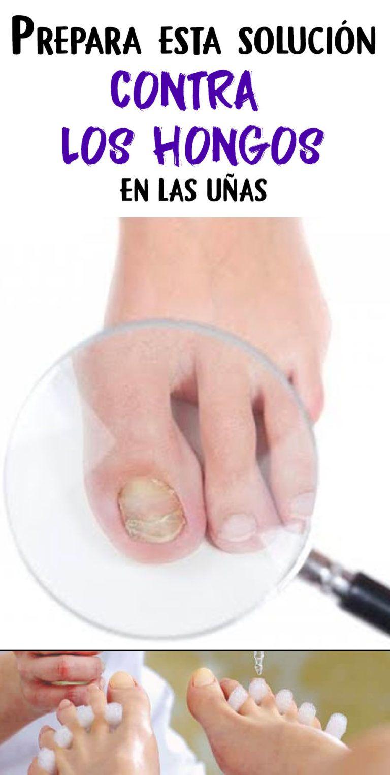 Prepara esta solución contra los hongos en las uñas