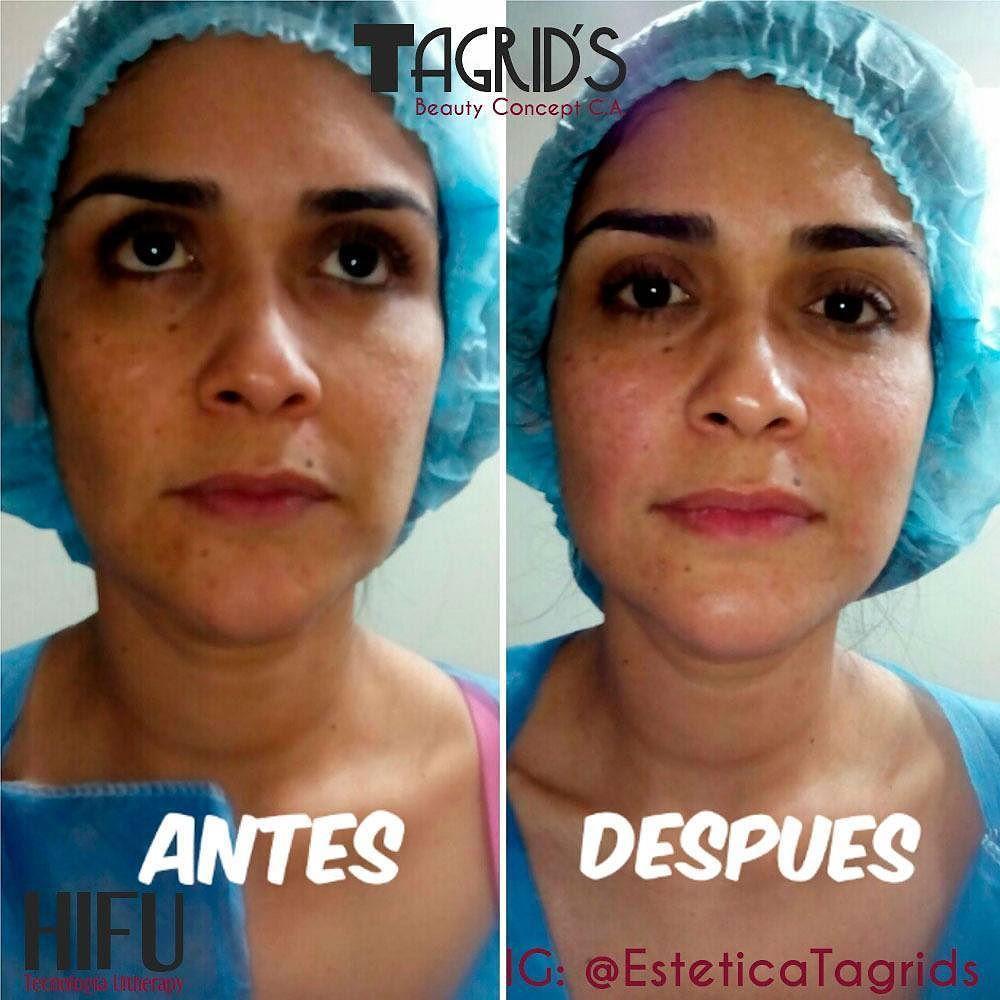 Hifu celulitis antes y despues
