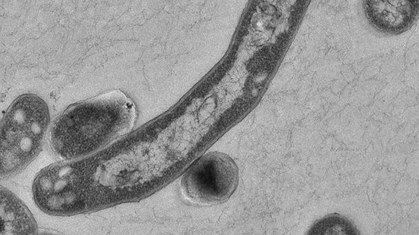 Tuberkulose in Deutschland: Zahl der TBC-Fälle steigt - t-online.de